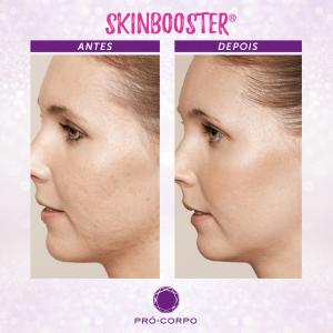 Skinbooster Antes e Depois