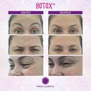 Toxina Botulínica - Fotos Antes e Depois