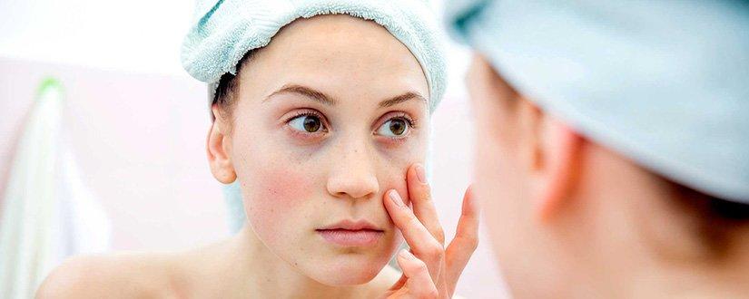 Tratamentos para todos os tipos de olheiras
