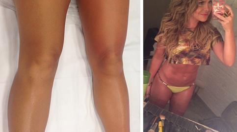 Fernanda Souza mostra antes e depois de Drenagem Linfática