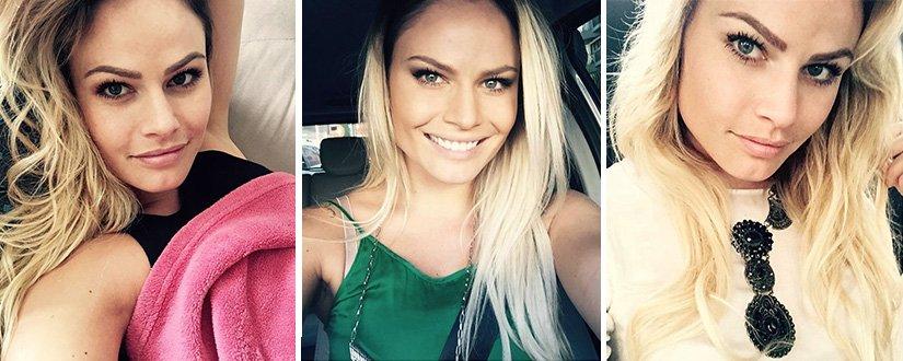 Natalia Casassola mostra antes e depois de sua bichectomia