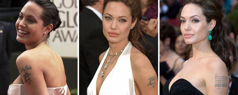 7 famosos que apagaram tatuagens com laser
