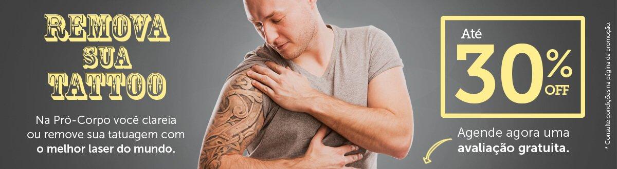 Remova sua tattoo com 30% de desconto