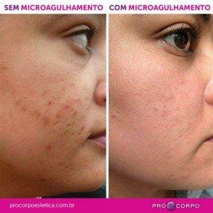 Microagulhamento Antes e Depois